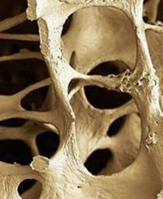 Osteoporosi: Update, tip and tricks